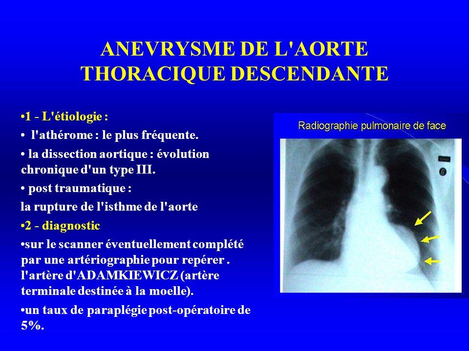 ANEVRYSME DE L AORTE THORACIQUE DESCENDANTE 1 - L étiologie : l athérome : le plus fréquente.