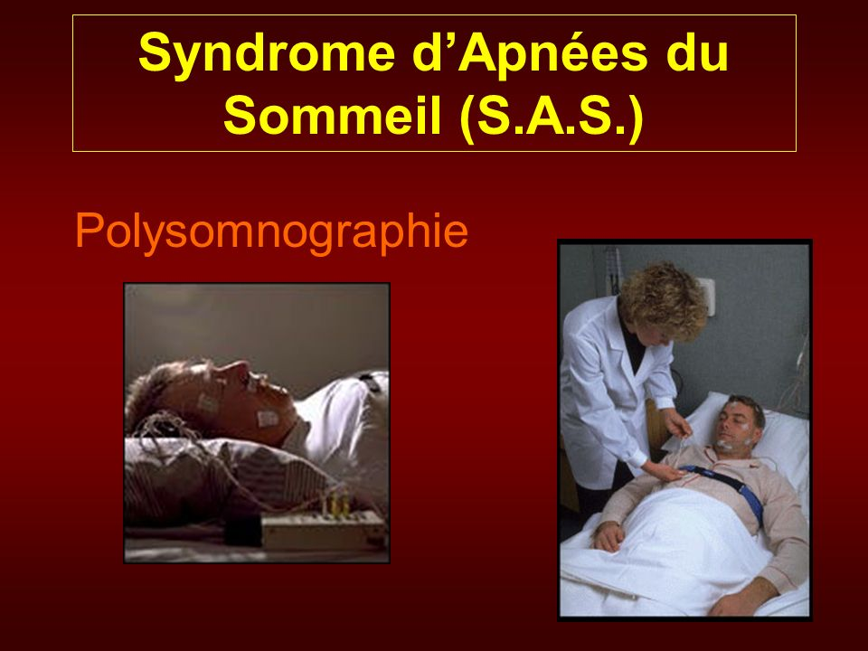 Syndrome dApnées du Sommeil (S.A.S.) Polysomnographie