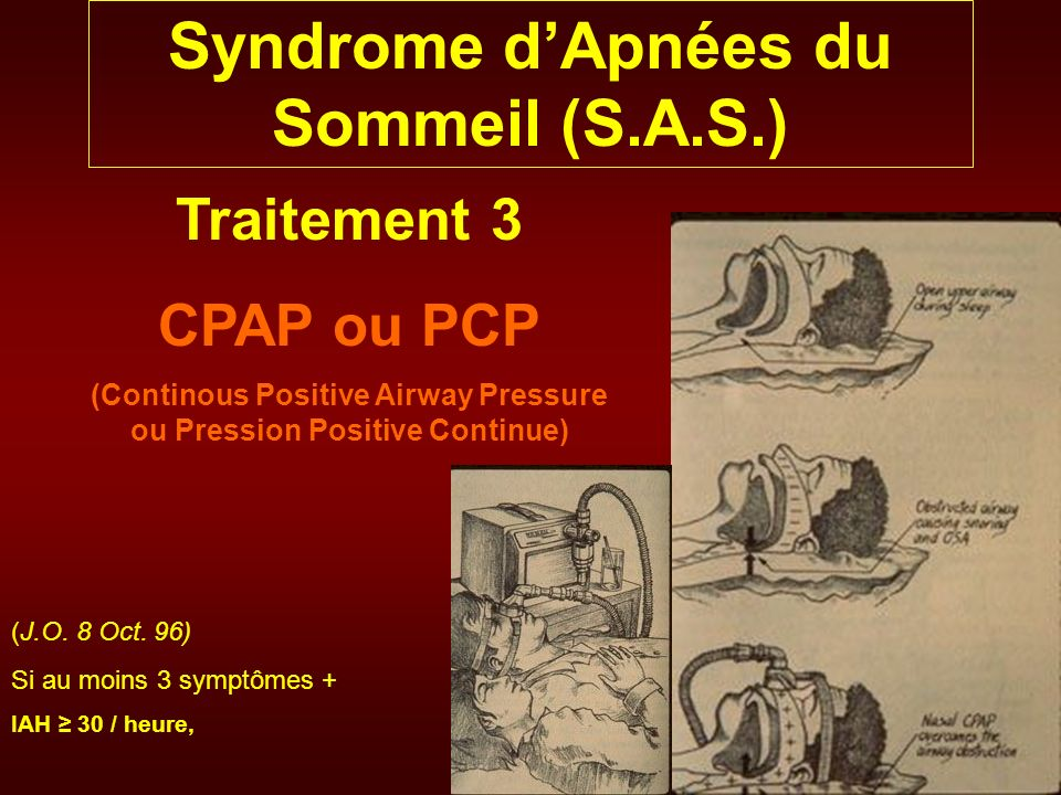 Syndrome dApnées du Sommeil (S.A.S.) Traitement 3 CPAP ou PCP (Continous Positive Airway Pressure ou Pression Positive Continue) (J.O. 8 Oct. 96) Si a