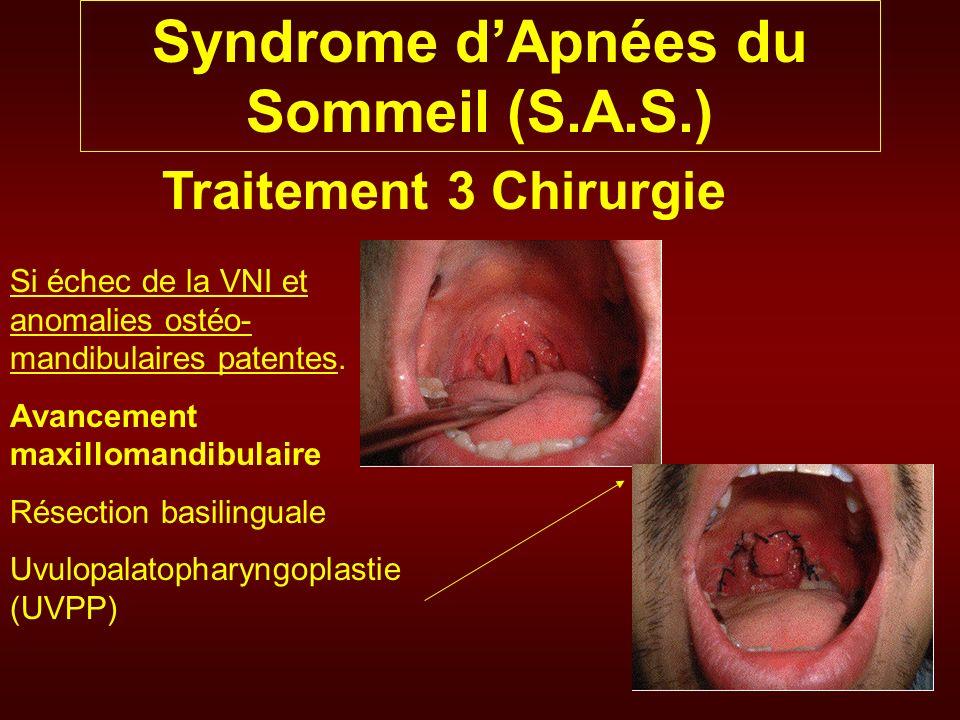 Syndrome dApnées du Sommeil (S.A.S.) Traitement 3 Chirurgie Si échec de la VNI et anomalies ostéo- mandibulaires patentes. Avancement maxillomandibula