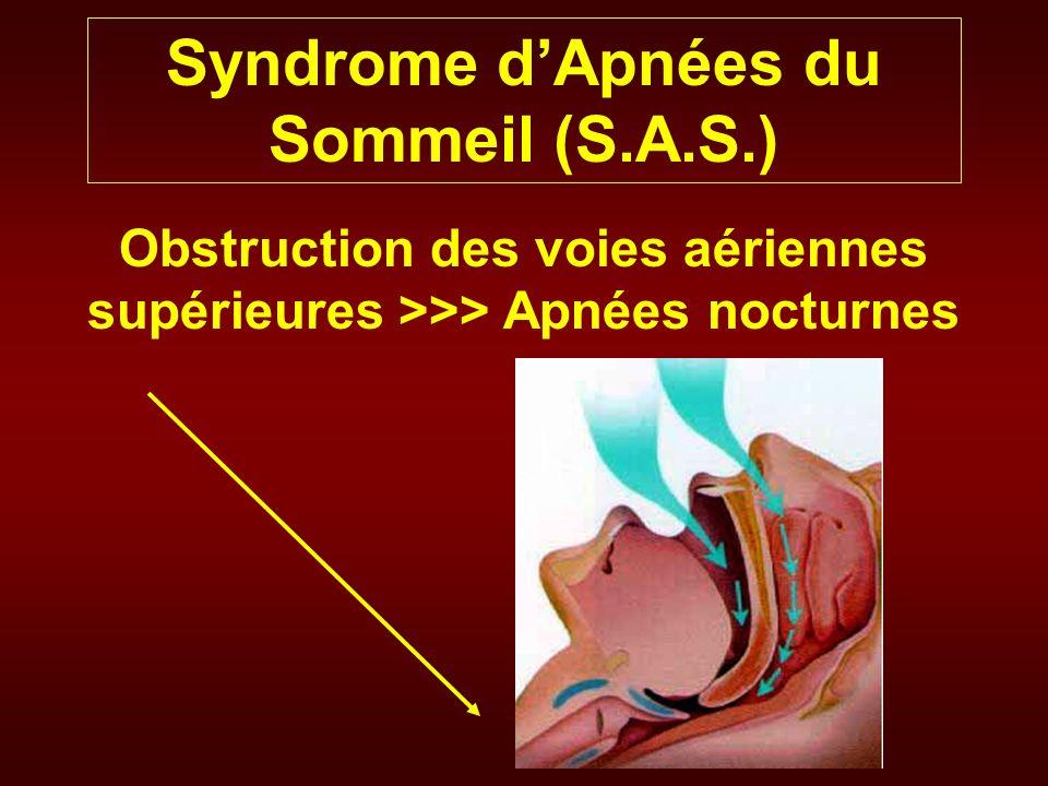 Syndrome dApnées du Sommeil (S.A.S.) Causes et terrain Souvent des patients obèses (BMI>35 kg/m²) Répartition fasciotronculaire de la graisse Eliminer une acromégalie Une Hypothyroidie Une macroglossie Une rétrognatie