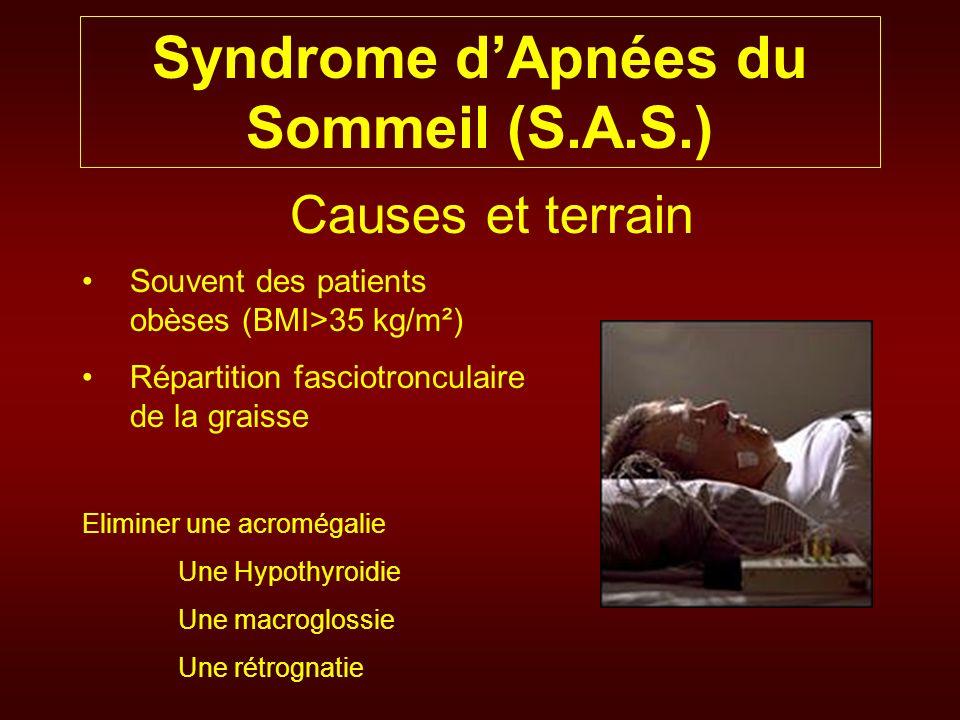 Syndrome dApnées du Sommeil (S.A.S.) Causes et terrain Souvent des patients obèses (BMI>35 kg/m²) Répartition fasciotronculaire de la graisse Eliminer