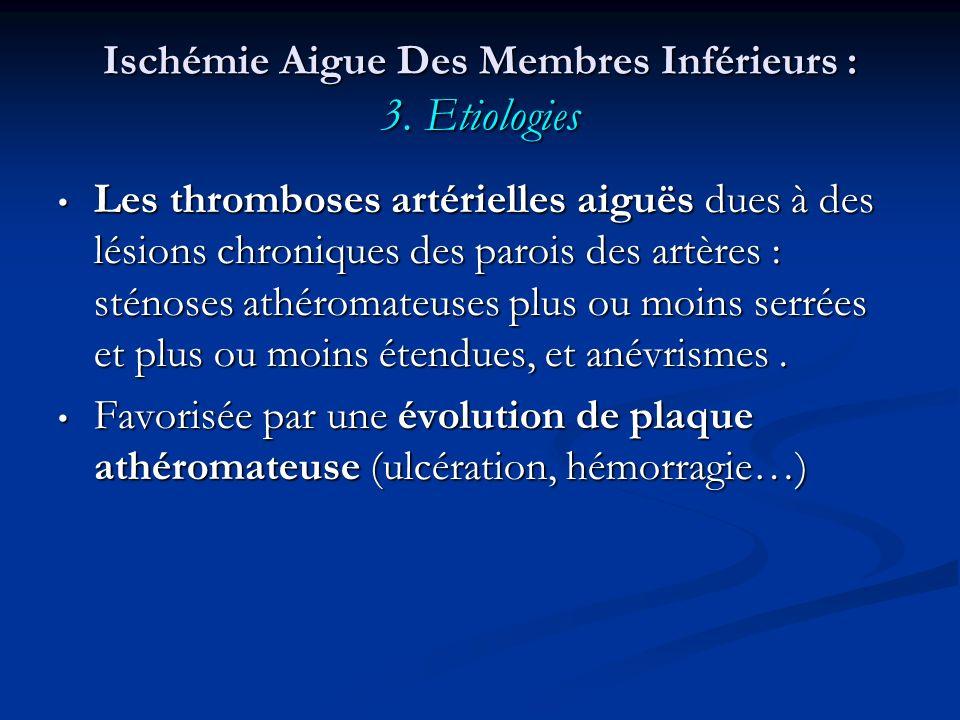 Ischémie Aigue Des Membres Inférieurs : 3. Etiologies Les thromboses artérielles aiguës dues à des lésions chroniques des parois des artères : sténose