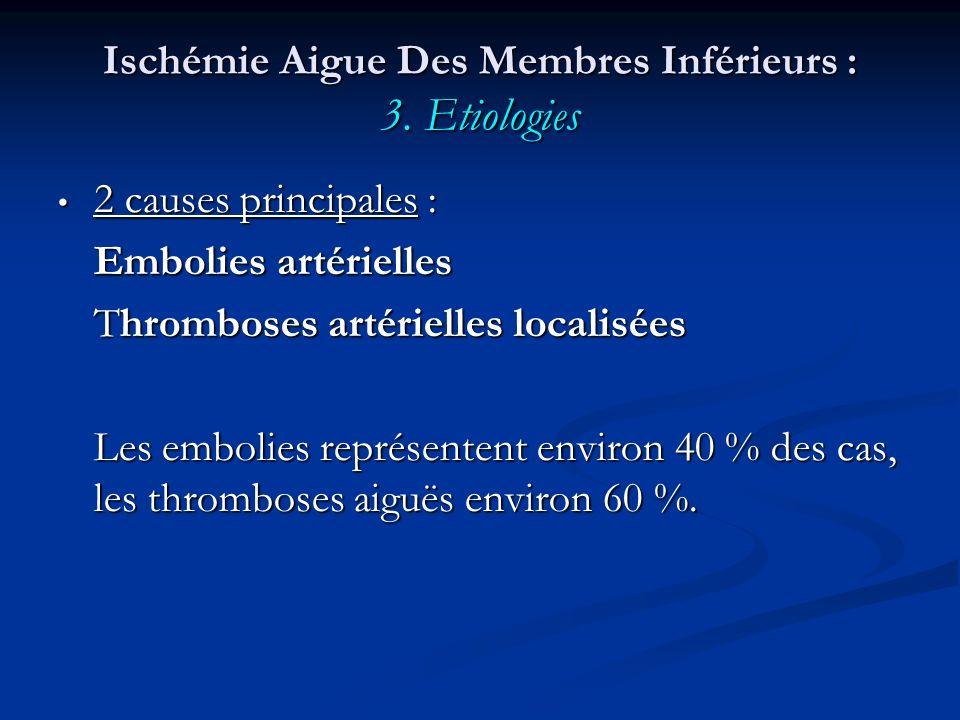 Ischémie Aigue Des Membres Inférieurs : 3. Etiologies 2 causes principales : 2 causes principales : Embolies artérielles Thromboses artérielles locali