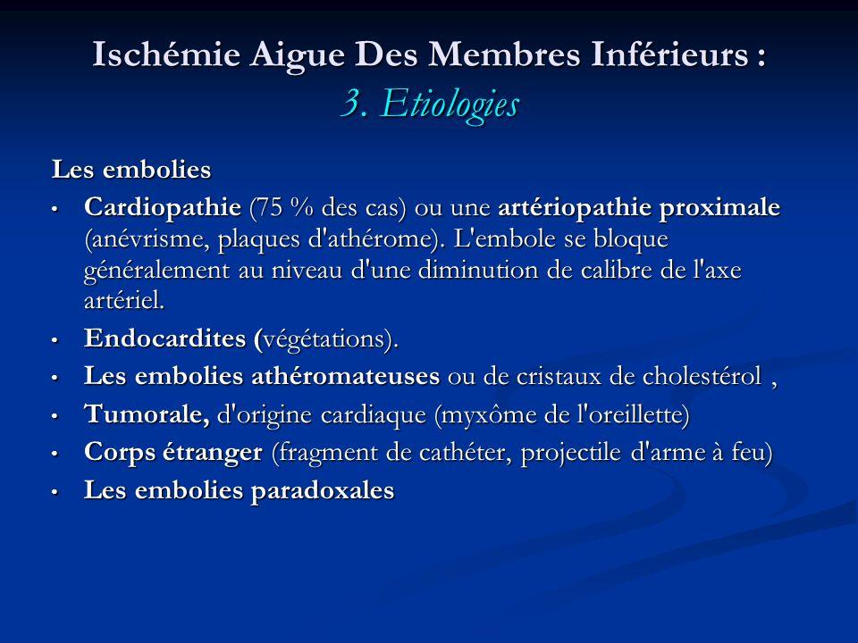 Ischémie Aigue Des Membres Inférieurs : 3. Etiologies Les embolies Cardiopathie (75 % des cas) ou une artériopathie proximale (anévrisme, plaques d'at