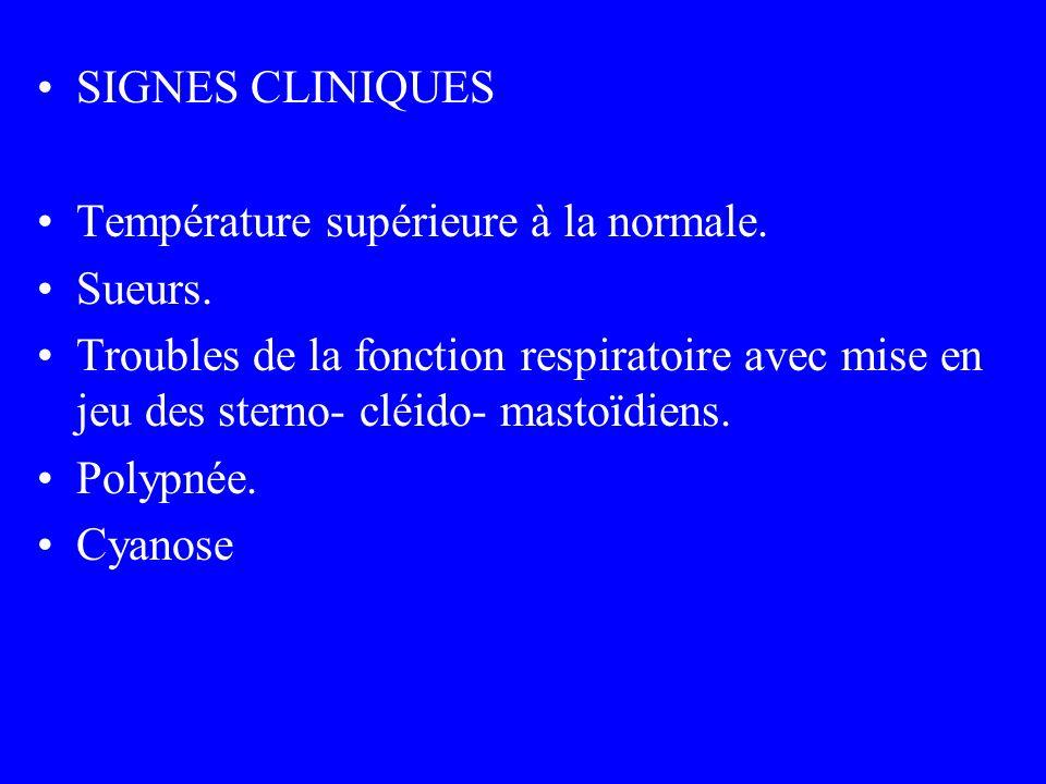 SIGNES CLINIQUES Température supérieure à la normale. Sueurs. Troubles de la fonction respiratoire avec mise en jeu des sterno- cléido- mastoïdiens. P