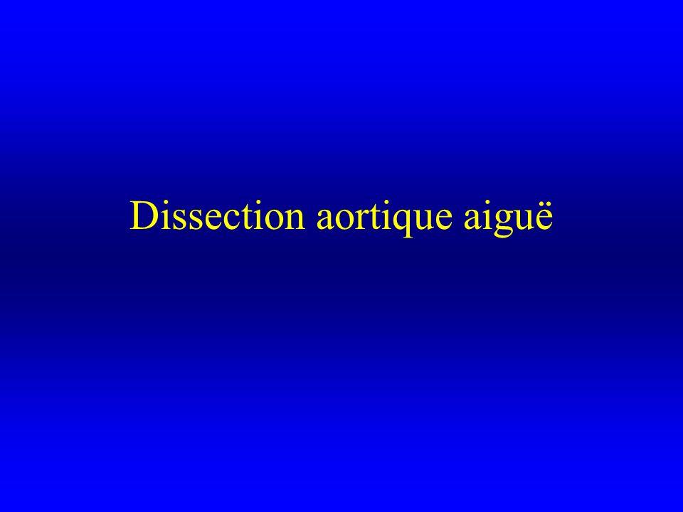 Dissection aortique aiguë