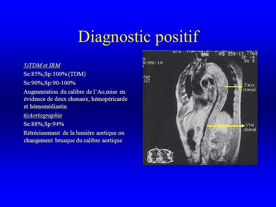 Diagnostic positif 5)TDM et IRM Se:85%,Sp:100% (TDM) Se:90%,Sp:90-100% Augmentation du calibre de lAo,mise en évidence de deux chenaux, hémopéricarde