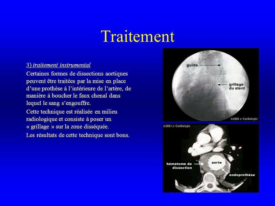 Traitement 3) traitement instrumental Certaines formes de dissections aortiques peuvent être traitées par la mise en place dune prothèse à lintérieure