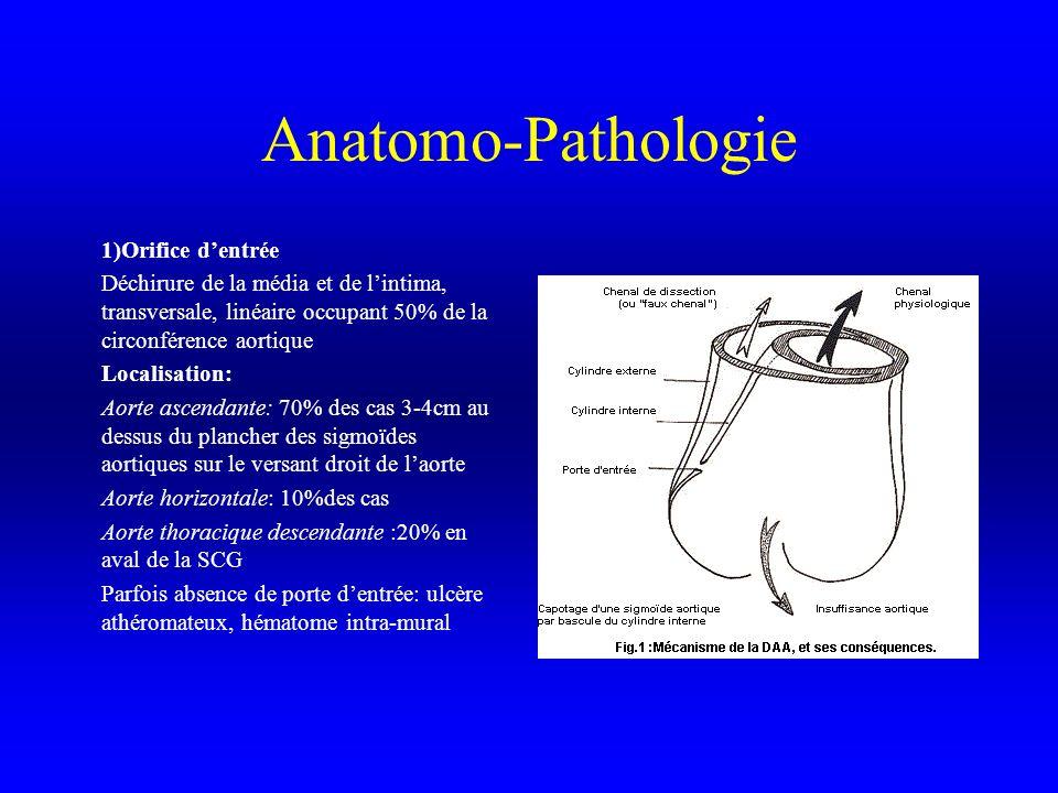 Anatomo-Pathologie 1)Orifice dentrée Déchirure de la média et de lintima, transversale, linéaire occupant 50% de la circonférence aortique Localisatio