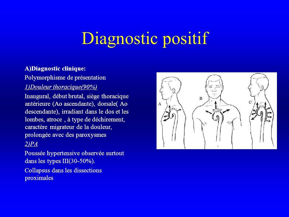 Diagnostic positif 3)Souffle diastolique dinsuffisance aortique Dans 2/3 des dissections proximales 4)Asymétrie ou disparition dun pouls 5)Asymétrie tensionnelle 6Autres signes Volontiers trompeurs, fièvre à 38 °, signes neurologiques (hémiplégie, crise convulsive,ischémie médullaire,…) signes rénaux( douleurs lombaires, oligurie,protéinurie, hématurie, anurie) hémopéricarde,signes gastro-intestinaux( vomissements, hématémèse),épanchement pleural gauche,IDM(1-2% des cas, CD++), troubles du rythme et de la conduction