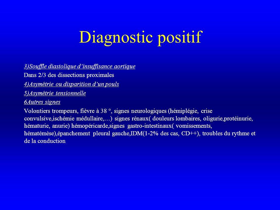 Diagnostic positif 3)Souffle diastolique dinsuffisance aortique Dans 2/3 des dissections proximales 4)Asymétrie ou disparition dun pouls 5)Asymétrie t