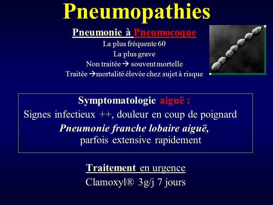 Pneumopathies Pneumonie à Pneumocoque La plus fréquente 60 La plus grave Non traitée souvent mortelle Traitée mortalité élevée chez sujet à risque Sym