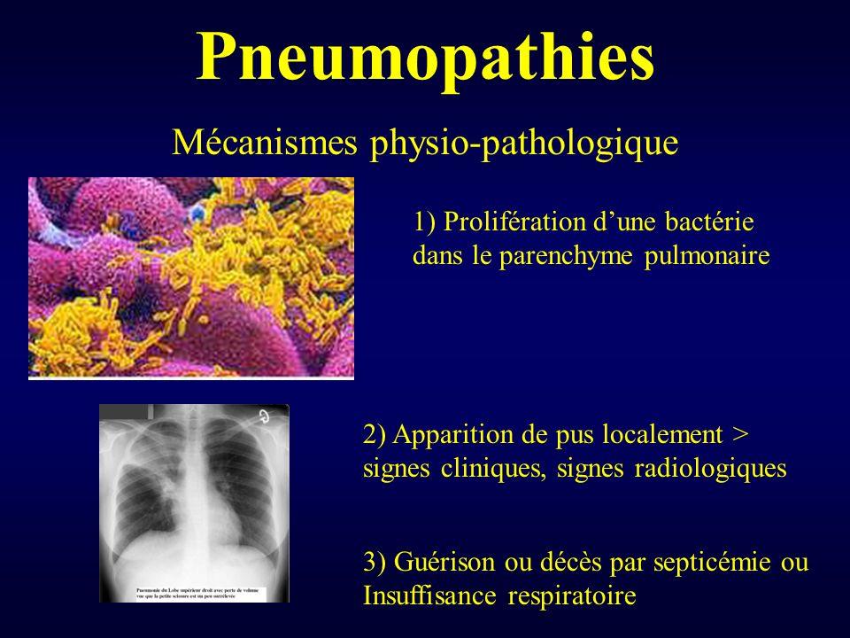 Pneumopathies Mécanismes physio-pathologique 1) Prolifération dune bactérie dans le parenchyme pulmonaire 2) Apparition de pus localement > signes cli