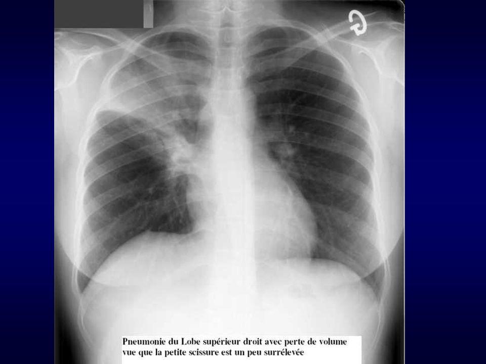 Pneumopathies Pneumopathies à germes ATYPIQUES - Mycoplasme - Légionnelle - Chlamydia pneumoniae Clinique : pneumonie frustre présence d autres signes : ORL, diarrhée et troubles neurologiques (légionelle) Radio : Pneumopathies interstitielles moins systématisées Traitement : Macrolides(Erythromycine 3g / j) ou Quinolones (Oflocet® 400 mg/j)