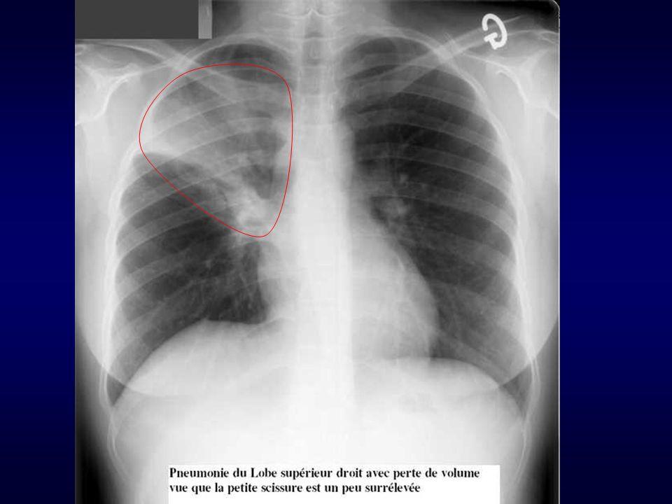 Pneumopathies Autres examens utiles NFS : Hyperleucocytose, polynucléose ou neutropénie CRP, VS : seront élévées GDS indispensables si signes de gravité ou terrain