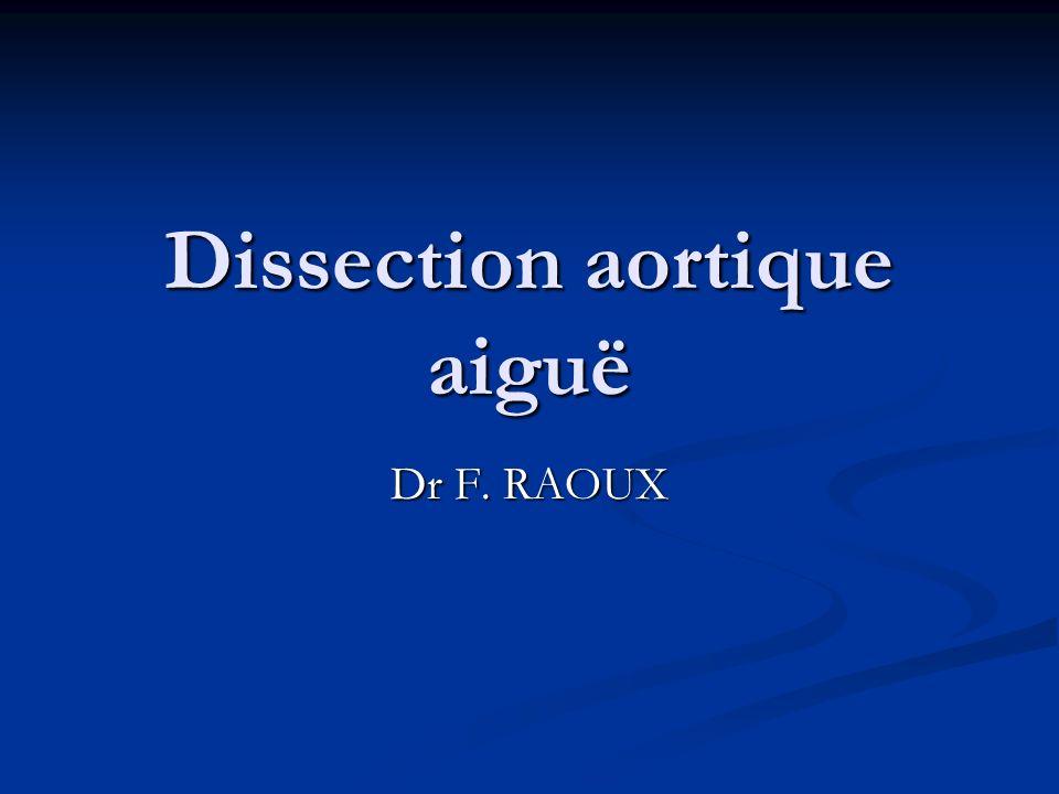 Dissection aortique aiguë Dr F. RAOUX