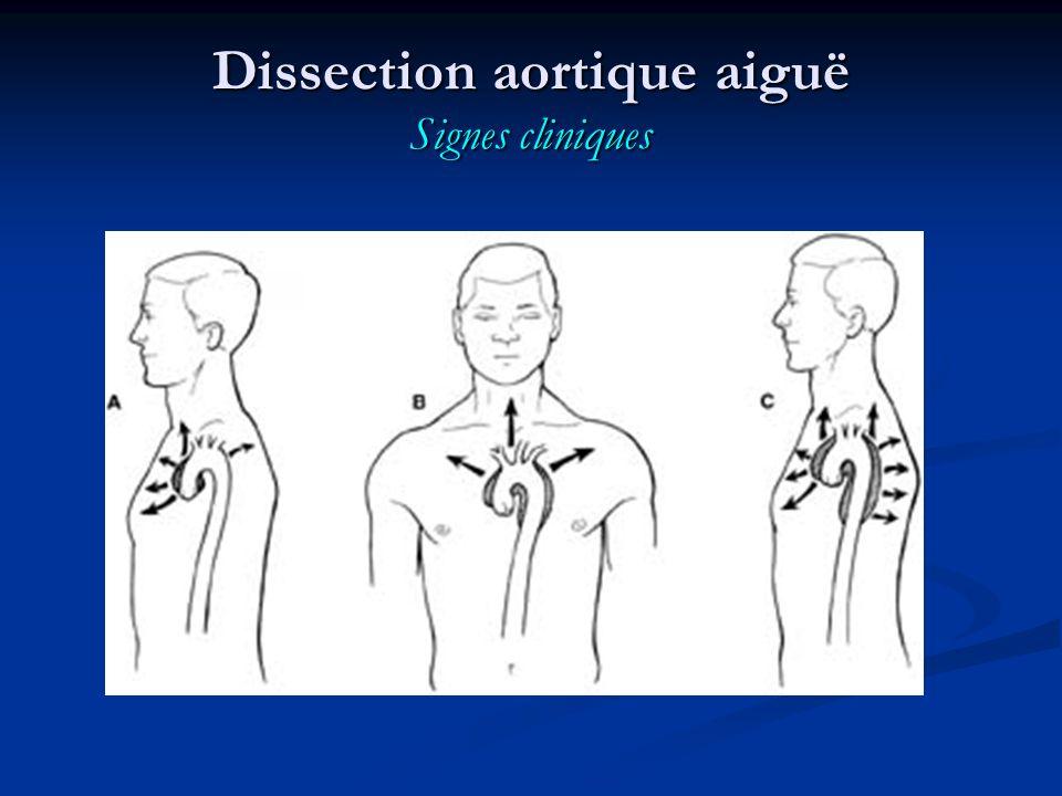 Dissection aortique aiguë Signes cliniques