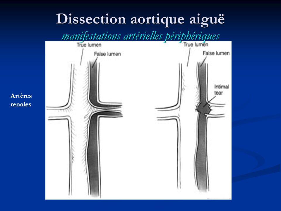 Dissection aortique aiguë manifestations artérielles périphériques Artères renales
