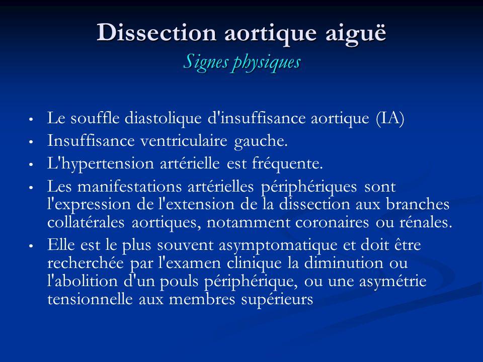 Dissection aortique aiguë Signes physiques Le souffle diastolique d insuffisance aortique (IA) Insuffisance ventriculaire gauche.