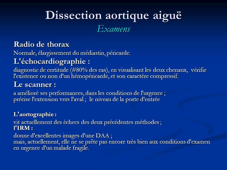 Dissection aortique aiguë Examens Radio de thorax Normale, élargissement du médiastin, péricarde.