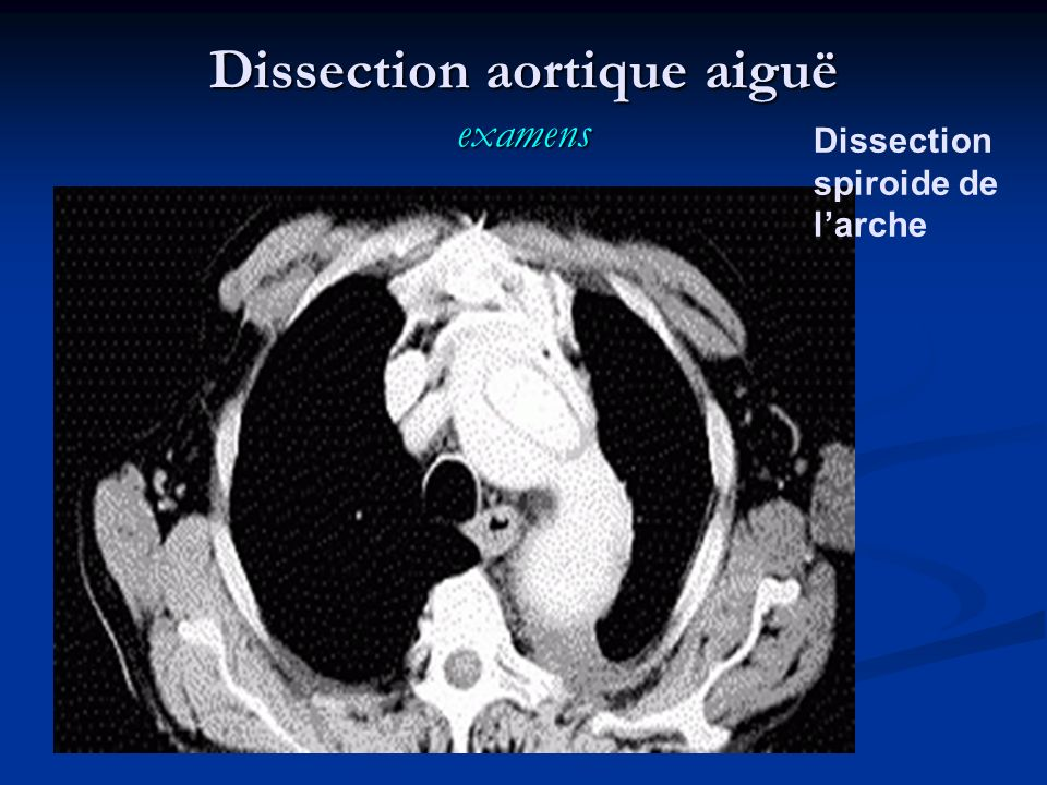 Dissection spiroide de larche Dissection aortique aiguë examens