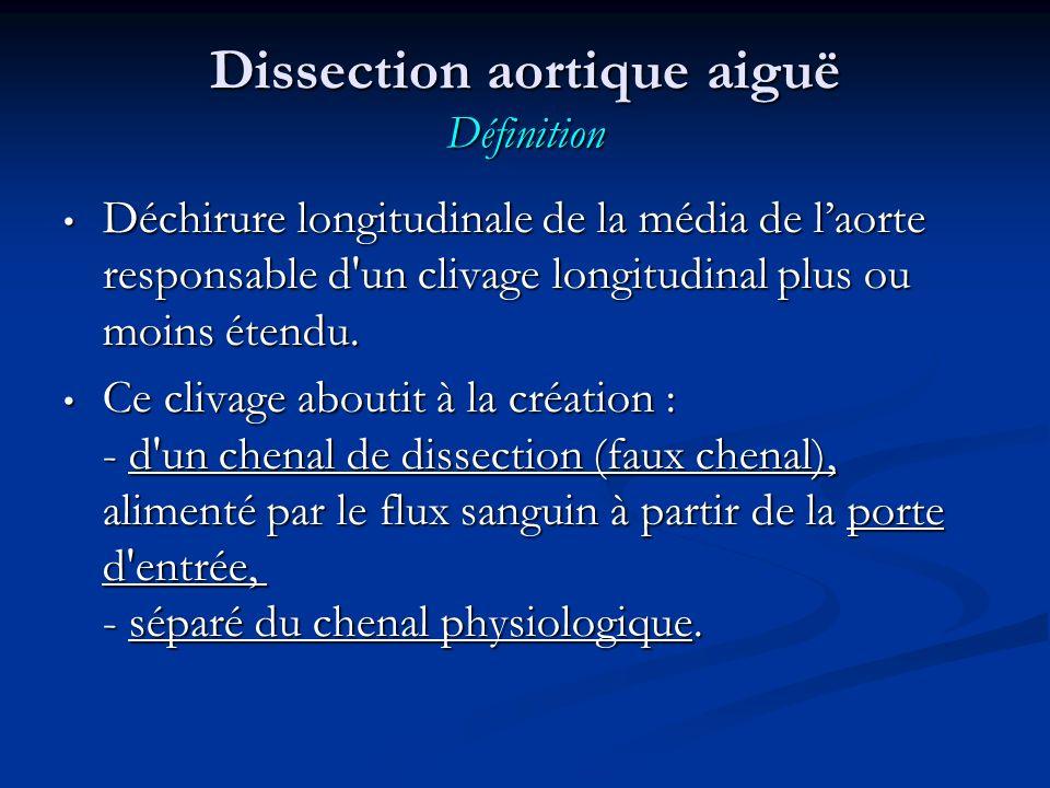 Dissection aortique aiguë Définition