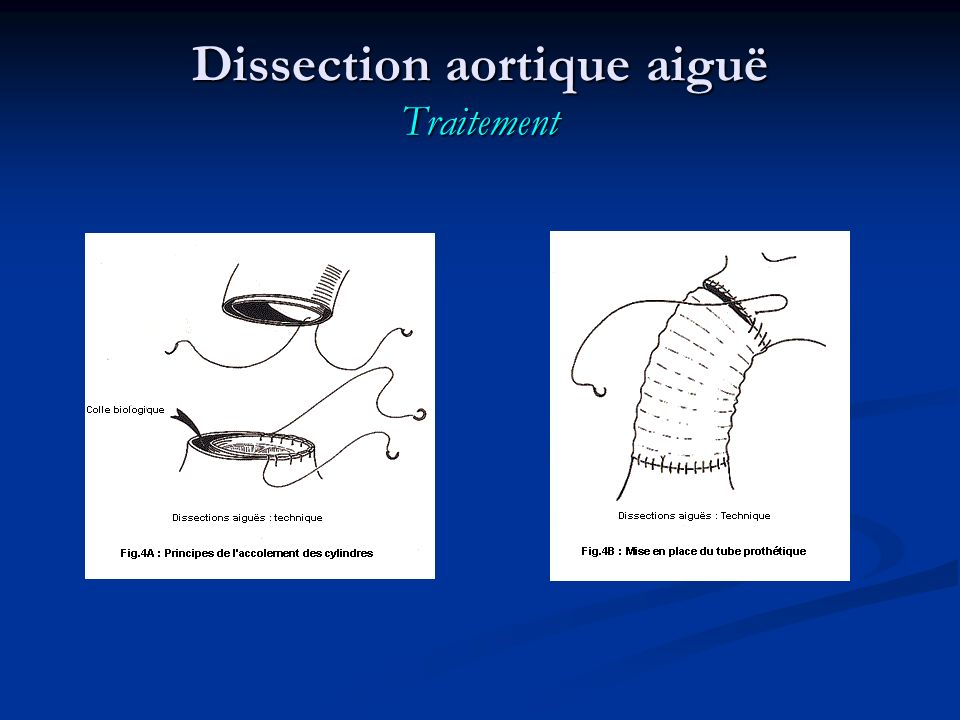 Dissection aortique aiguë Traitement