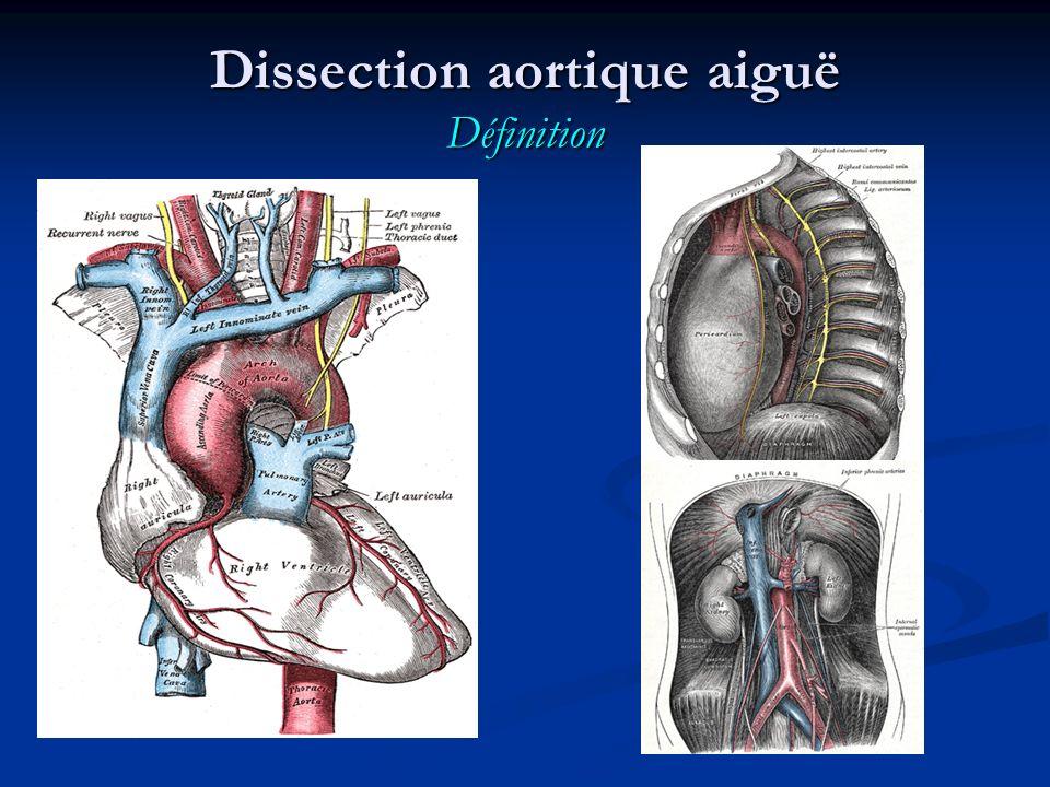 Dissection aortique aiguë Signes cliniques Douleur initiale : (présente dans 80 à 95% des cas) Douleur initiale : (présente dans 80 à 95% des cas) - thoracique ; - constrictive, intense, durable ; - surtout évocatrice si elle est migrante (+++), d abord thoracique, puis dorsale et abdominale.