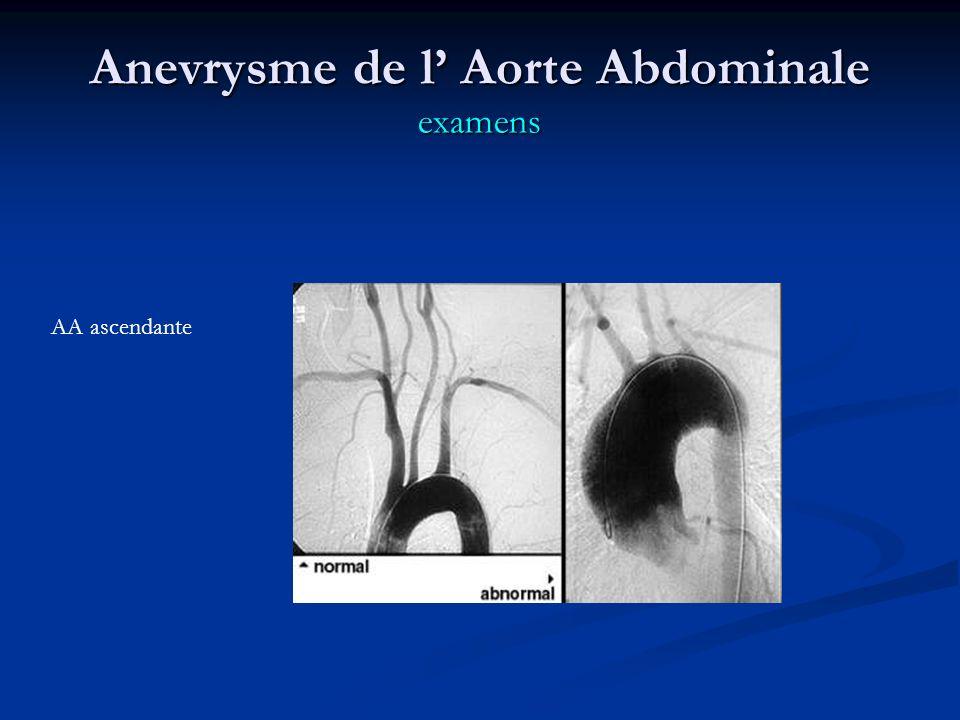 Anevrysme de l Aorte Abdominale examens AA ascendante
