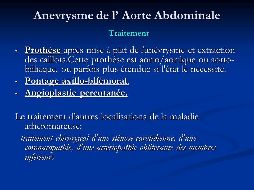 Anevrysme de l Aorte Abdominale Traitement Prothèse après mise à plat de l anévrysme et extraction des caillots.Cette prothèse est aorto/aortique ou aorto- biiliaque, ou parfois plus étendue si l état le nécessite.