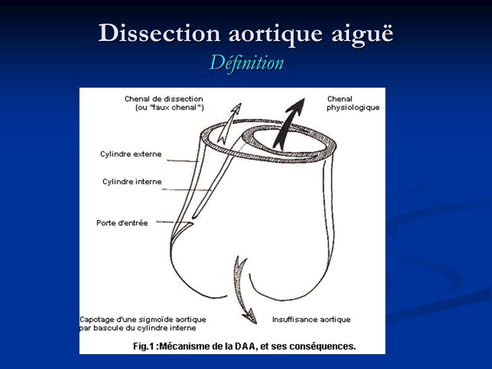 Dissection aortique aiguë Signes généraux Etat de choc est fréquent, mais rarement marqué et durable ; Etat de choc est fréquent, mais rarement marqué et durable ; Mais surtout rechercher des signes de tamponnade.