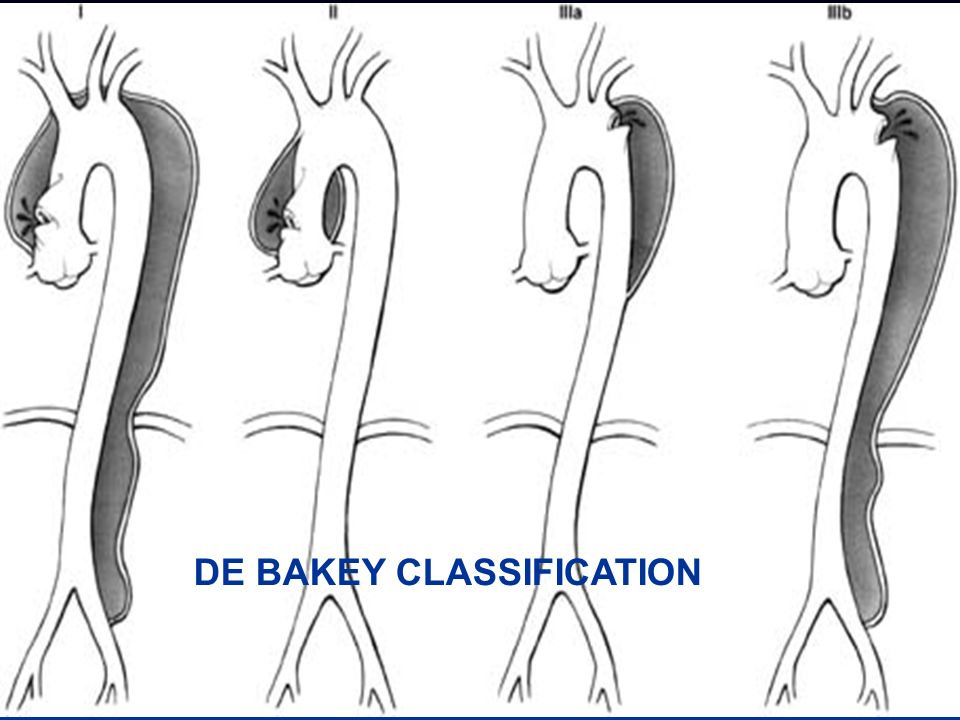 DE BAKEY CLASSIFICATION