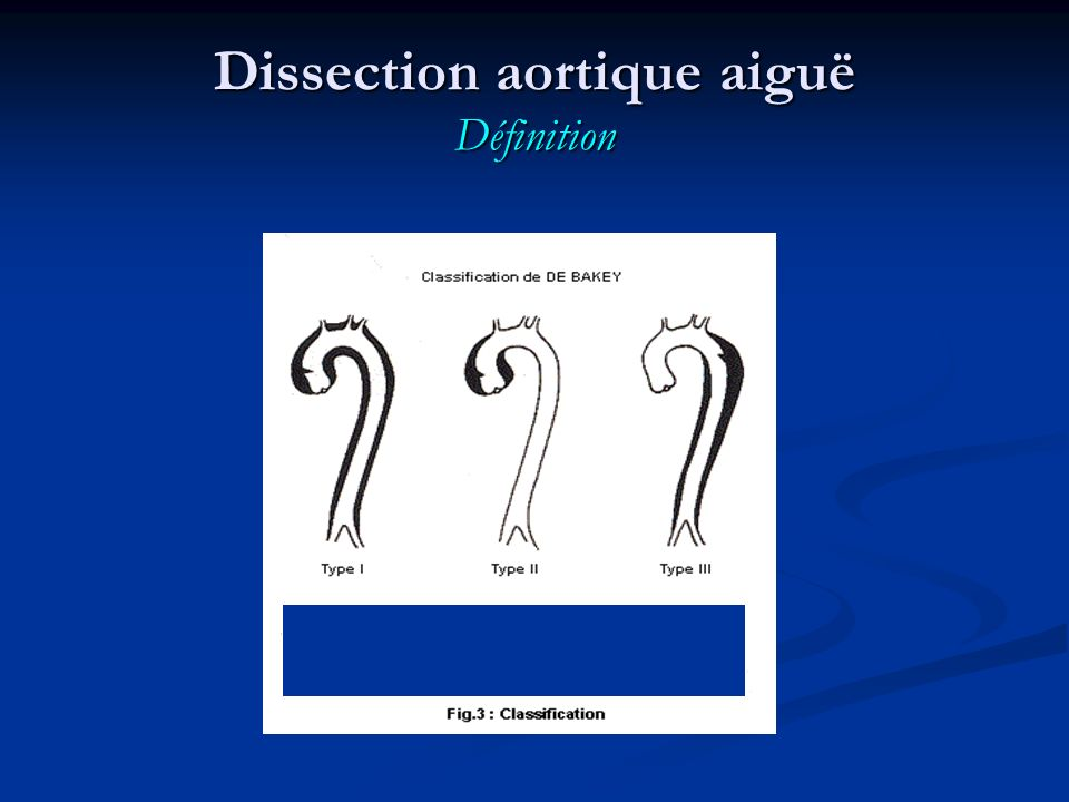 TYPE A AORTIC DISSECTION blood tensed adventitia Dissection aortique aiguë Traitement