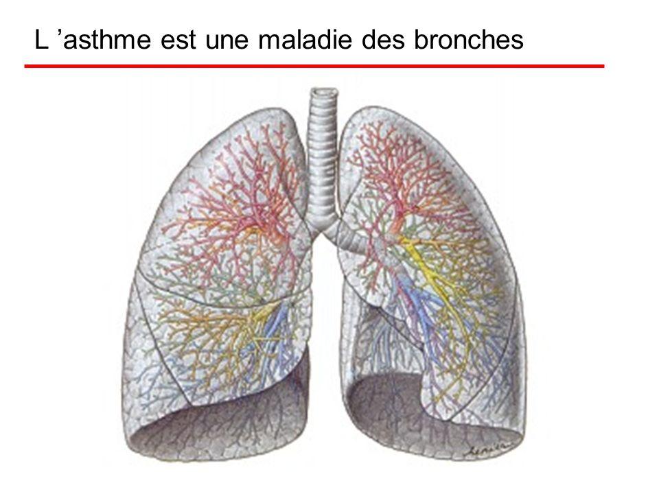 Asthme. Physiopathologie L inflammation bronchique Lobstruction bronchique La distension thoracique