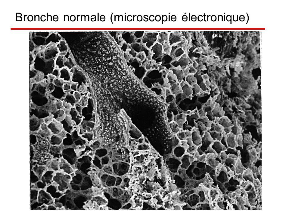 Les bronches normales (microscopie optique)
