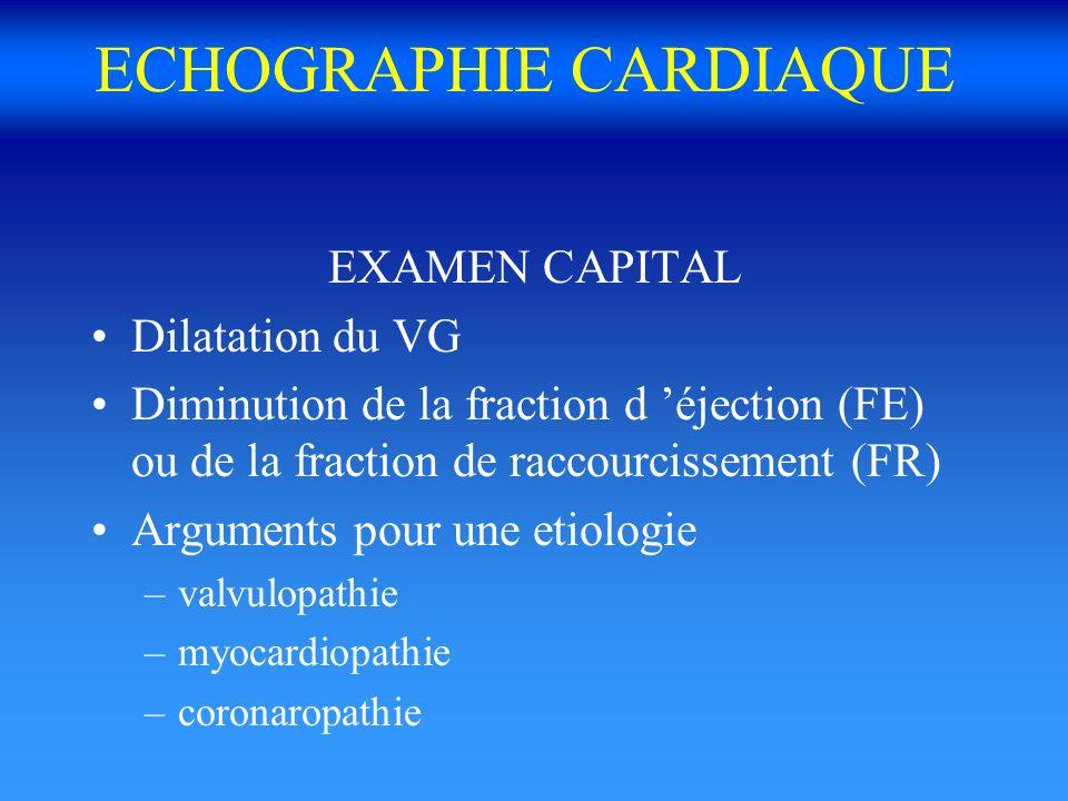 ECHOGRAPHIE CARDIAQUE EXAMEN CAPITAL Dilatation du VG Diminution de la fraction d éjection (FE) ou de la fraction de raccourcissement (FR) Arguments p