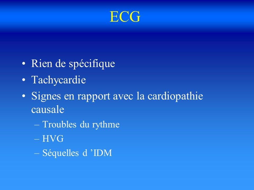 ECG Rien de spécifique Tachycardie Signes en rapport avec la cardiopathie causale –Troubles du rythme –HVG –Séquelles d IDM
