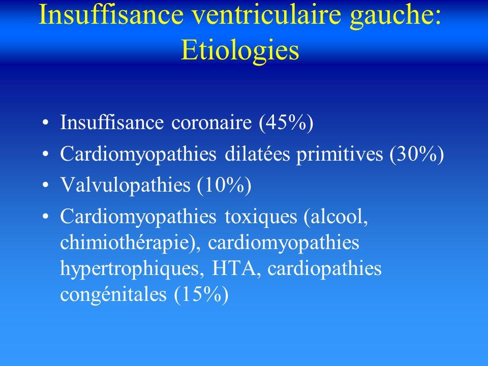 Insuffisance ventriculaire gauche: Etiologies Insuffisance coronaire (45%) Cardiomyopathies dilatées primitives (30%) Valvulopathies (10%) Cardiomyopa