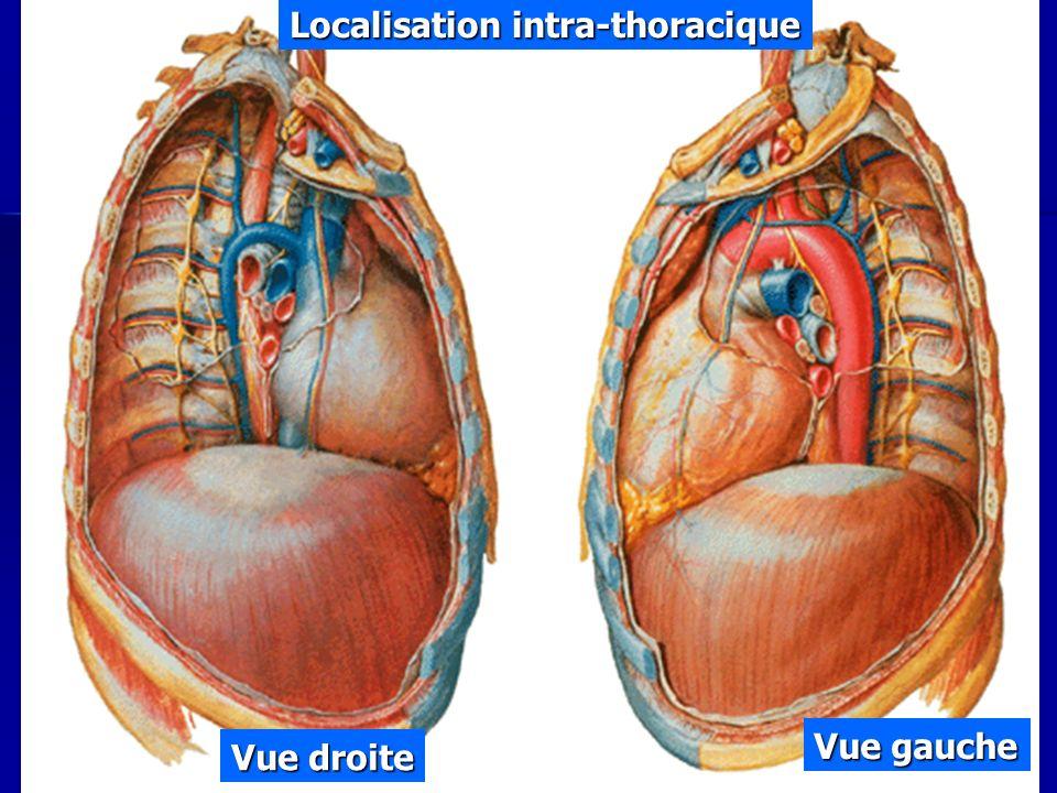 Cours IFSI 2003 Vue droite Vue gauche Localisation intra-thoracique