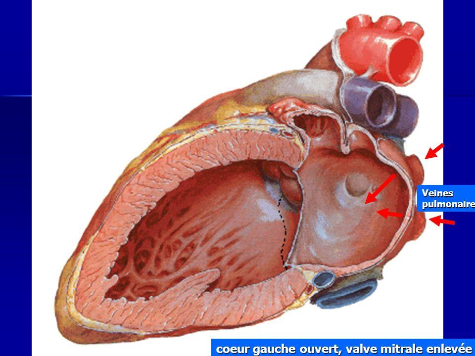 Cours IFSI 2003 coeur gauche ouvert, valve mitrale enlevée Veines pulmonaires