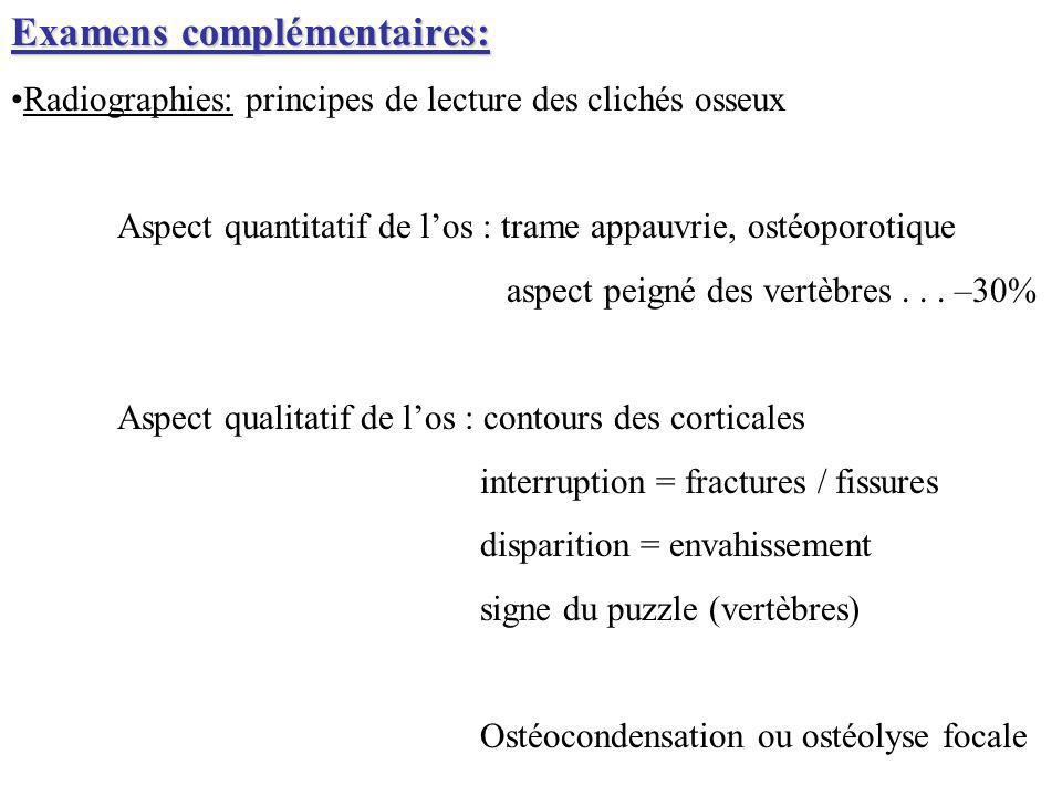 Examens complémentaires: Radiographies: principes de lecture des clichés osseux Aspect quantitatif de los : trame appauvrie, ostéoporotique aspect pei
