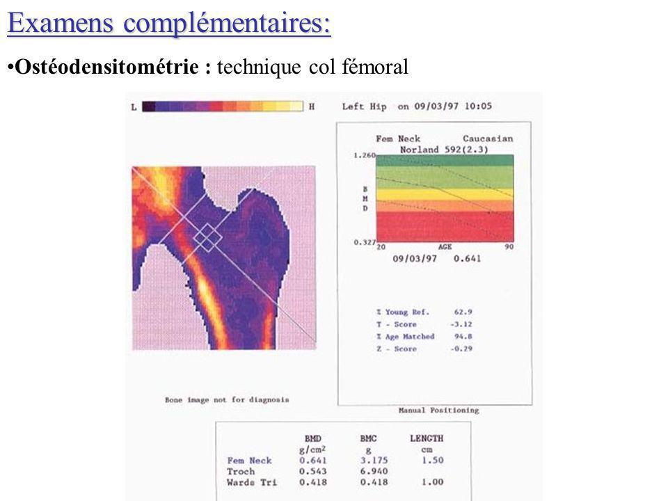 Examens complémentaires: Ostéodensitométrie : technique col fémoral