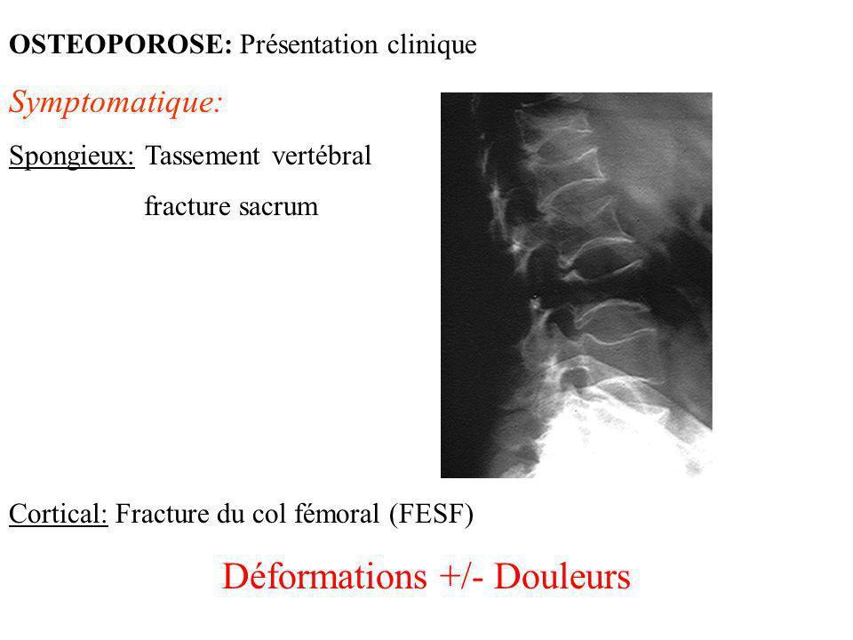 OSTEOPOROSE: Présentation clinique Symptomatique: Spongieux: Tassement vertébral fracture sacrum Cortical: Fracture du col fémoral (FESF) Déformations