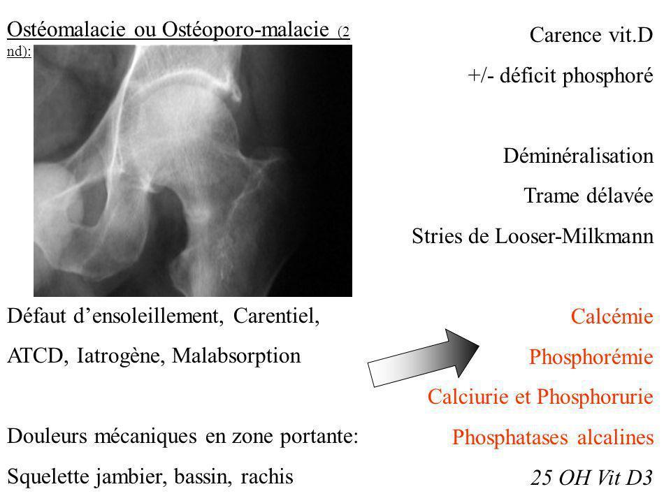 Ostéomalacie ou Ostéoporo-malacie (2 nd): Défaut densoleillement, Carentiel, ATCD, Iatrogène, Malabsorption Douleurs mécaniques en zone portante: Sque