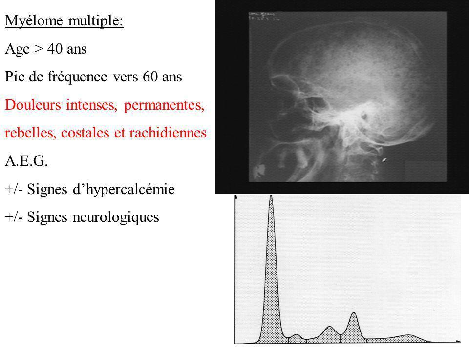 Myélome multiple: Age > 40 ans Pic de fréquence vers 60 ans Douleurs intenses, permanentes, rebelles, costales et rachidiennes A.E.G. +/- Signes dhype