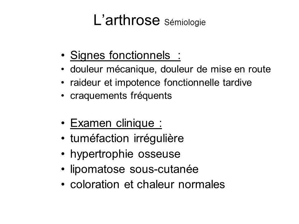 Larthrose Sémiologie Signes fonctionnels : douleur mécanique, douleur de mise en route raideur et impotence fonctionnelle tardive craquements fréquent