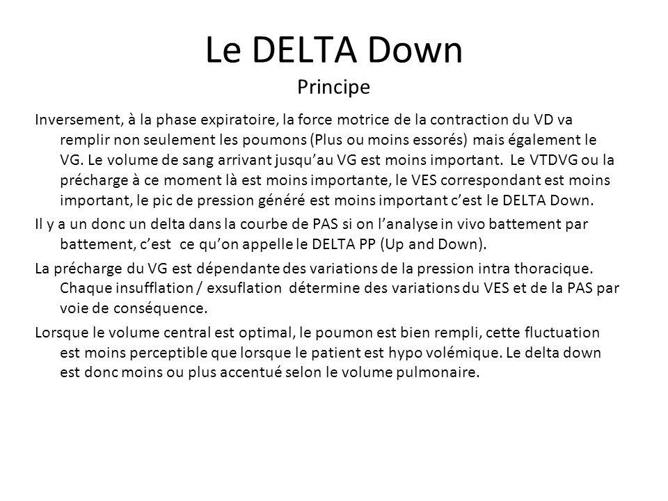 Le DELTA Down Principe Inversement, à la phase expiratoire, la force motrice de la contraction du VD va remplir non seulement les poumons (Plus ou moi
