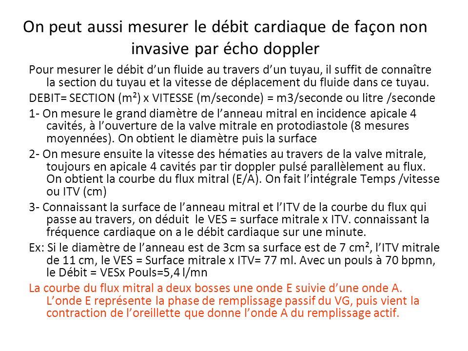 On peut aussi mesurer le débit cardiaque de façon non invasive par écho doppler Pour mesurer le débit dun fluide au travers dun tuyau, il suffit de co