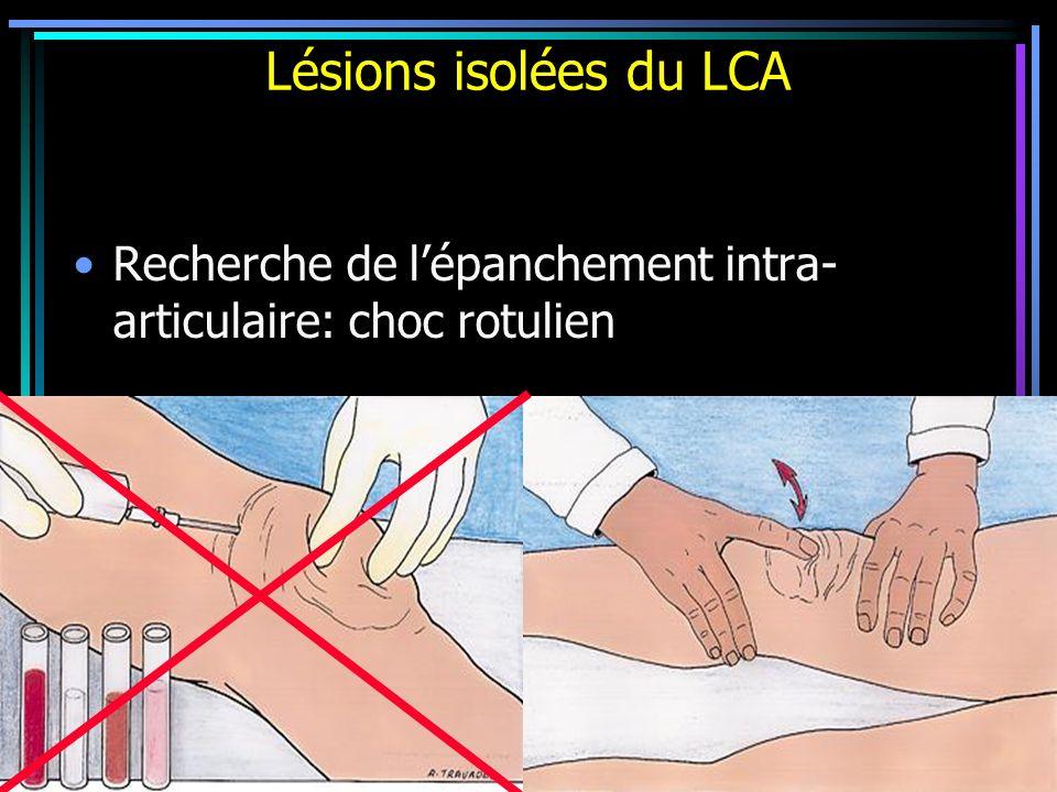 Lésions isolées du LCA Recherche de lépanchement intra- articulaire: choc rotulien